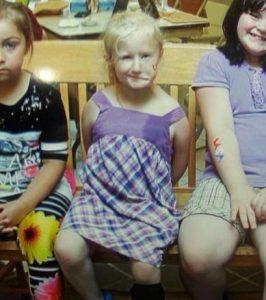 Moebius Syndrome – Alyssa