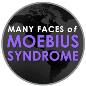 Many Faces of Moebius Syndrome