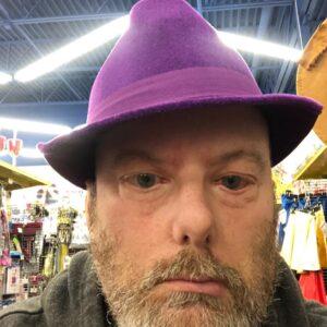 Tim Smith: Moebius Syndrome