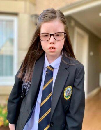 Moebius Syndrome - Abbi
