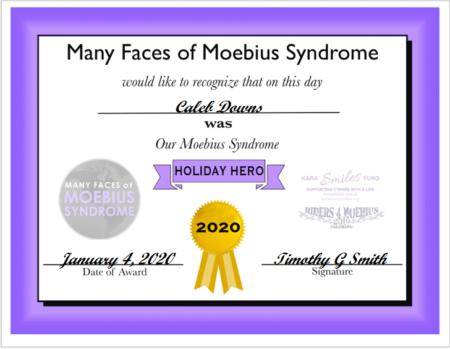 Moebius Syndrome