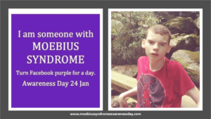 January 04, 2020 / Caleb Downs Moebius Syndrome Holiday Hero