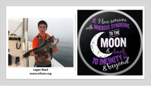 January 2, 2020 / Logan Reed Moebius Syndrome Holiday Hero