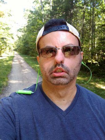 Moebius Syndrome - Ron