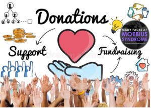 Moebius Syndrome Donations
