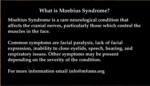 Whart is Moebius Syndrome?