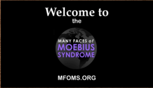 What is Moebius Syndrome?